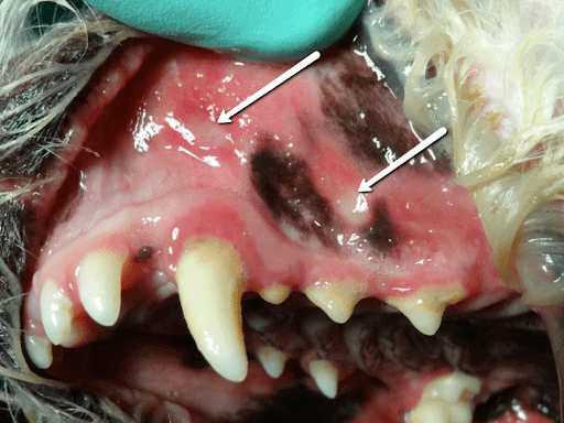 Image of Ulceration or ulcers adjacent to the tissues of the teeth